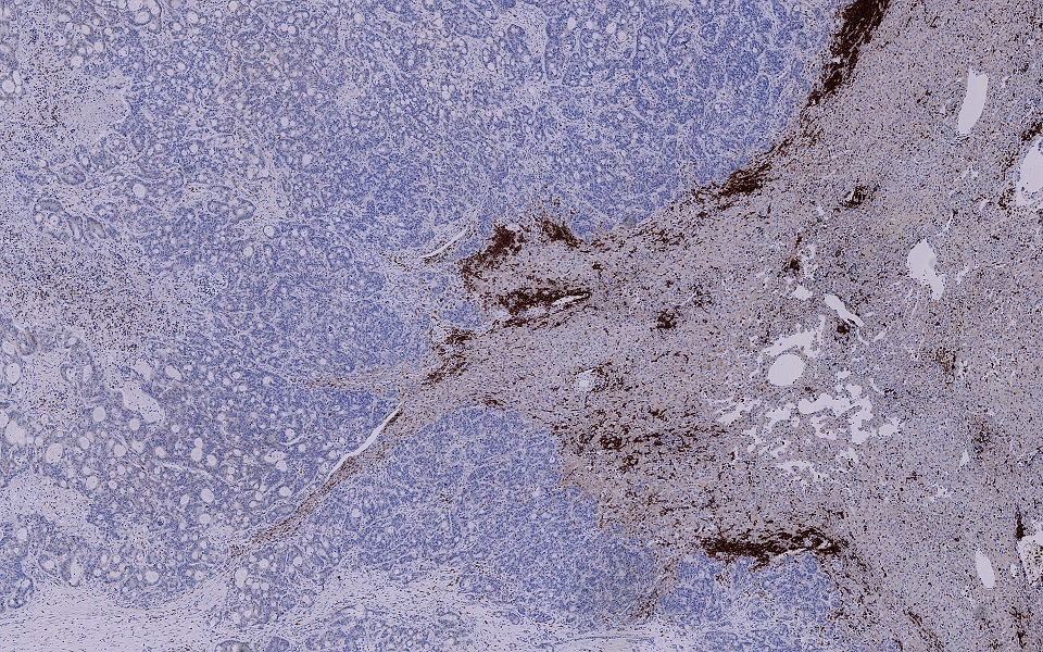 CD3 positive T cells (brown) at the invasive margin of a Colorectal Cancer Liver Metastasis.