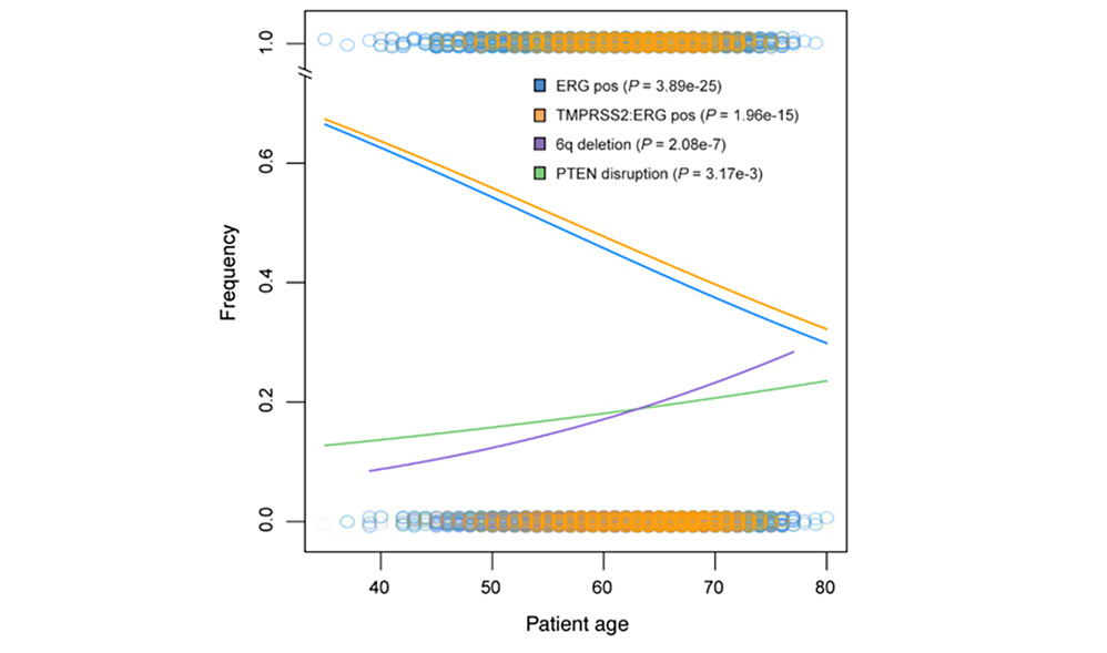 high frequency of the TMPRSS2:ERG fusion gene in young patients