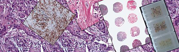 TMA, Immunohistochemistry and quantification by virtual microscopy