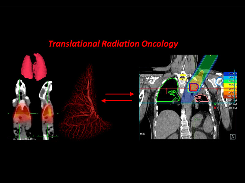 Translational Radiation Oncology